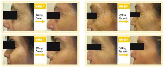 Ovomet摂取により、TEWL(経皮水分蒸散量)、肌のハリ、肌疲労、肌弾力が改善しました。また、写真で示している通り、しわや色素沈着の減少が確認されました。